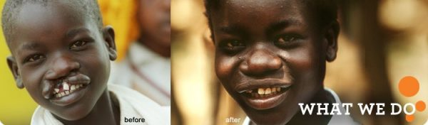 Operation Smile before and after